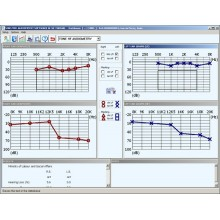 Software Audiometro Sibelmed W50.